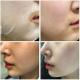 ILDONG FIRSTLAB Probiotic Mask 25g - Тканевая маска с пробиотиками